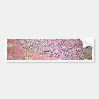 Piel humana con el cáncer de piel debajo de un pegatina para auto