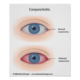Pink eyes disease, labeled diagram. poster