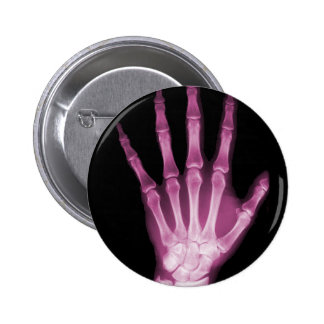 Pink X-ray Skeleton Hand Button