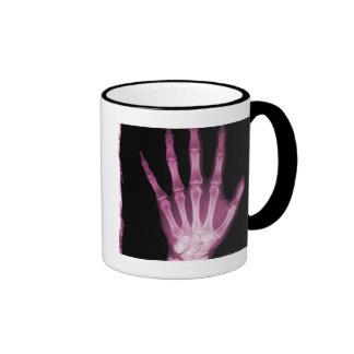 Pink X-ray Skeleton Hand Coffee Mug