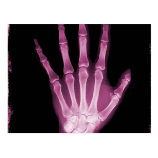 Pink X-ray Skeleton Hand Post Card