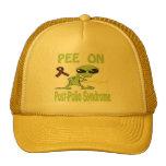 Pis en el gorra del síndrome de la Poste-Poliomiel