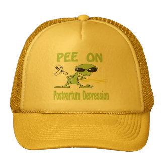 Pis en el gorra postparto de la depresión