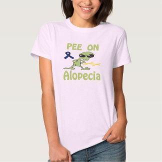 Pis en la camisa de la alopecia