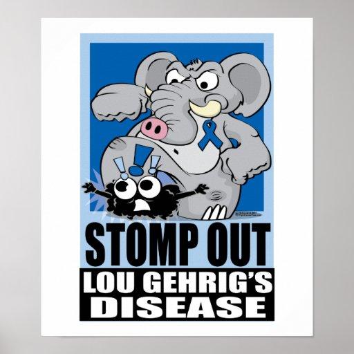 Pisa fuerte hacia fuera el ALS Poster