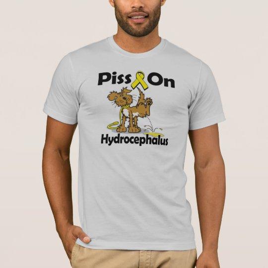 Piss On Hydrocephalus T-Shirt