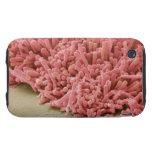 Placa-formación de bacterias, exploración carcasa resistente para iPhone