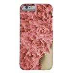 Placa-formación de bacterias, exploración funda de iPhone 6 barely there