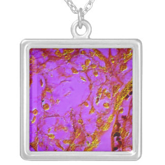 Placental Villi Silver Plated Necklace