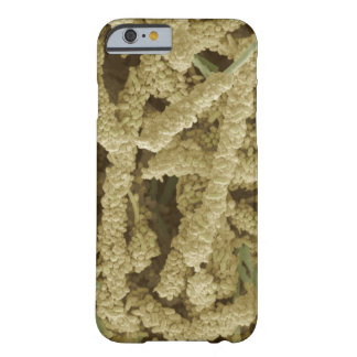 Plaque-forming bacteria, coloured scanning 2 barely there iPhone 6 case