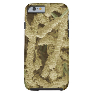 Plaque-forming bacteria, coloured scanning 2 tough iPhone 6 case