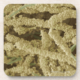 Plaque-forming bacteria, coloured scanning 2 coaster