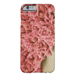 Plaque-forming bacteria, coloured scanning barely there iPhone 6 case