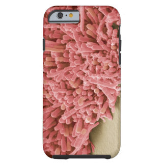 Plaque-forming bacteria, coloured scanning tough iPhone 6 case