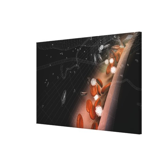 Plaque in the arteries canvas print