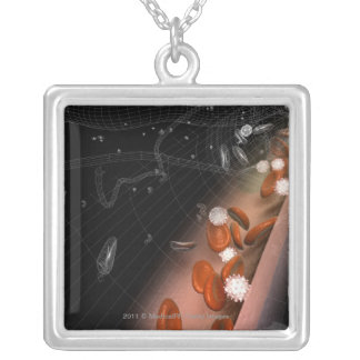 Plaque in the arteries silver plated necklace