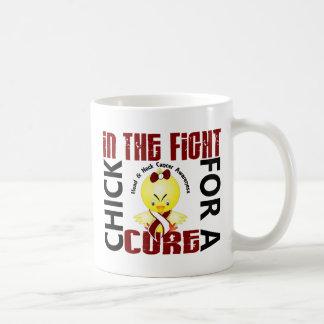 Polluelo en el cáncer de cabeza y cuello de la luc tazas de café