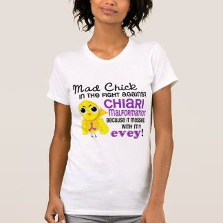 Polluelo enojado 2 cada malformación de Chiari