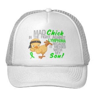Polluelo enojado ensuciado con mi linfoma del hijo gorras