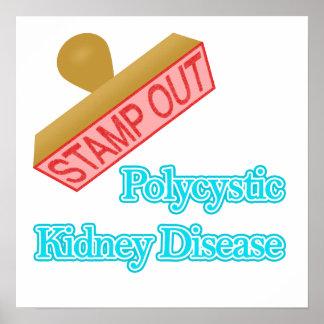 Polycystic Kidney Disease Print