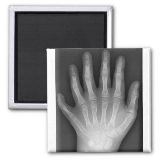 ¡Polydactyly seis manos digitadas radiografía r Iman De Frigorífico