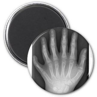 ¡Polydactyly seis manos digitadas radiografía r Imán