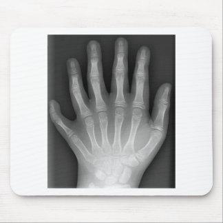 ¡Polydactyly, seis manos digitadas, radiografía, r Alfombrillas De Ratón