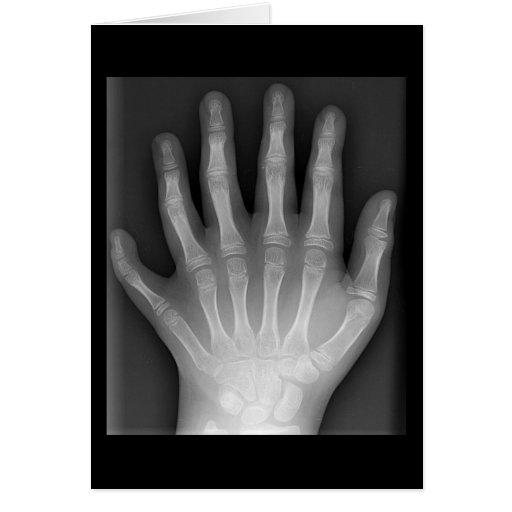 ¡Polydactyly, seis manos digitadas, radiografía, r Tarjeta