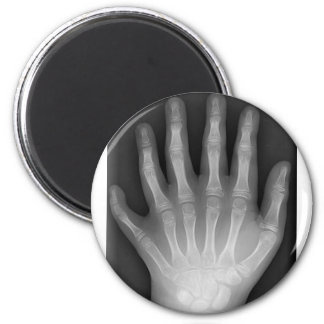 Polydactyly, Six Fingered Hand, X-Ray, rarity! 2 Inch Round Magnet
