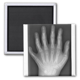 Polydactyly, Six Fingered Hand, X-Ray, rarity! 2 Inch Square Magnet