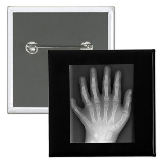 Polydactyly, Six Fingered Hand, X-Ray, rarity! Button