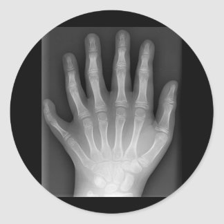 Polydactyly, Six Fingered Hand, X-Ray, rarity! Classic Round Sticker