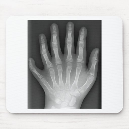 Polydactyly, Six Fingered Hand, X-Ray, rarity! Mouse Pad