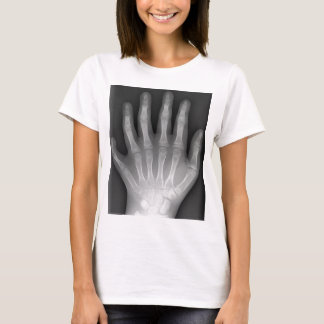Polydactyly, Six Fingered Hand, X-Ray, rarity! T-Shirt