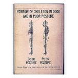 Posición del esqueleto en postura buena y en pobre tarjetas informativas