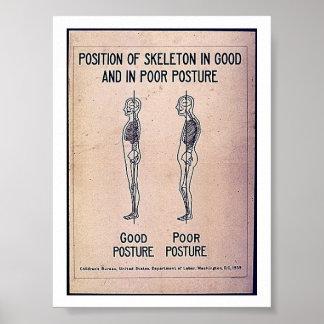 Posición del esqueleto en postura buena y en pobre impresiones