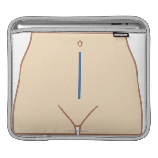 Position of Colectomy Incision iPad Sleeve