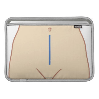 Position of Colectomy Incision MacBook Air Sleeve