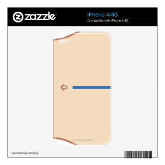 Position of Colectomy Incision Skin For The iPhone 4