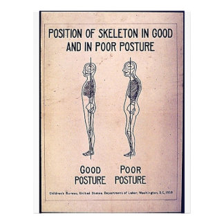 """Position Of Skeleton In Good And In Poor Posture 8.5"""" X 11"""" Flyer"""