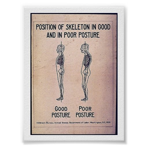 Position Of Skeleton In Good And In Poor Posture Poster
