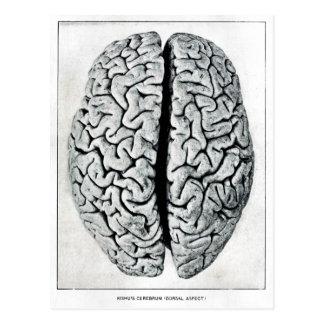 Postal del cerebro del vintage