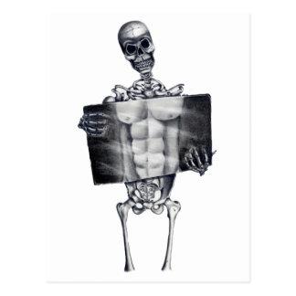 Postal esquelética del blanco de la radiografía de