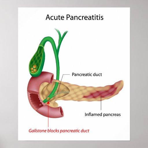 Poster agudo de la pancreatitis