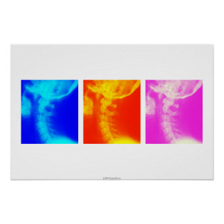 Poster cervical 2 de la quiropráctica de la