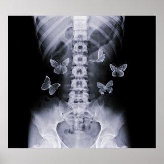 Poster conceptual de anticipación de las mariposas póster