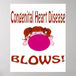 Poster congénito de la enfermedad cardíaca de los  póster