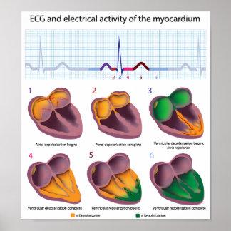 Poster de la actividad eléctrica del corazón de EC