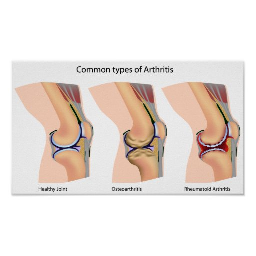 Poster de la artritis