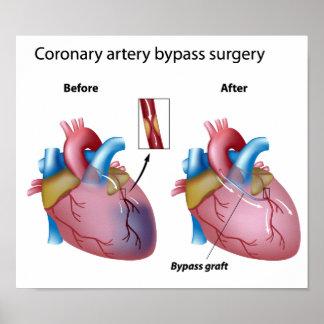 Poster de la cirugía de puente de corazón póster